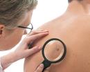 Bild für Kategorie Dermatologie
